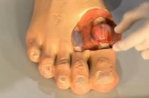 Названы первые симптомы развития подагры-заболевания, поражающего суставы
